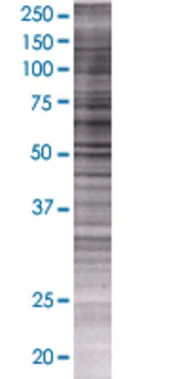 AbnovaARSG 293T Cell Transient Overexpression Lysate (Denatured) 100μL:Protein