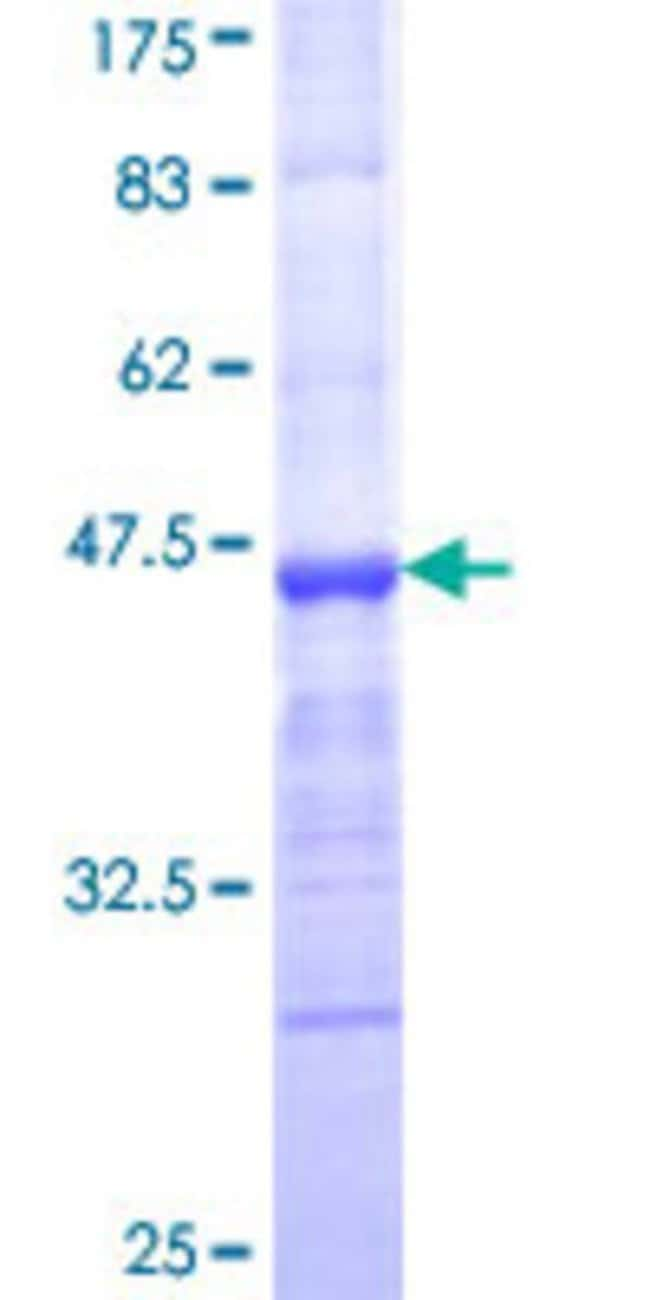 AbnovaHuman MMRN1 Partial ORF (NP_031377, 291 a.a. - 390 a.a.) Recombinant