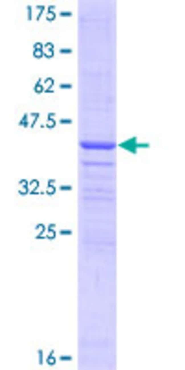AbnovaHuman CD93 Partial ORF (NP_036204, 33 a.a. - 140 a.a.) Recombinant