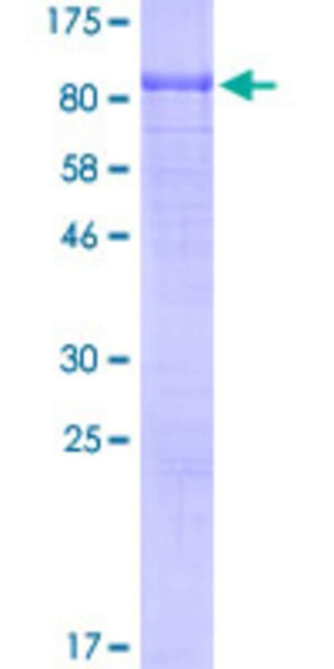 Abnova™Human CD93 Partial ORF (ABM85160.1, 24 a.a. - 580 a.a.) Recombinant Protein with GST-tag at N-terminal 10μg Abnova™Human CD93 Partial ORF (ABM85160.1, 24 a.a. - 580 a.a.) Recombinant Protein with GST-tag at N-terminal
