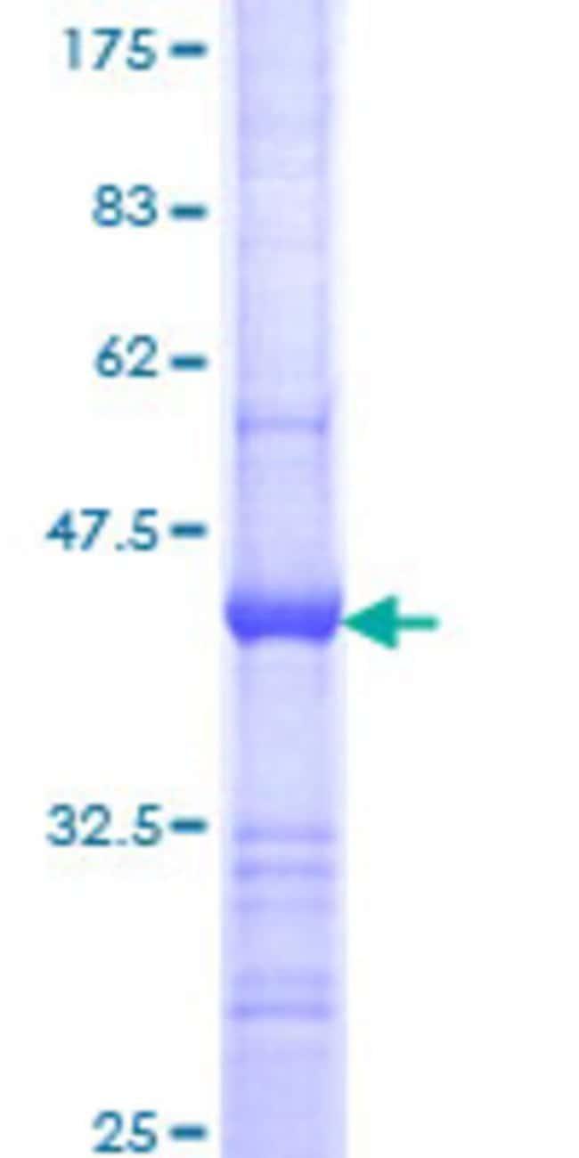 AbnovaHuman MAPRE1 Partial ORF (NP_036457, 1 a.a. - 110 a.a.) Recombinant