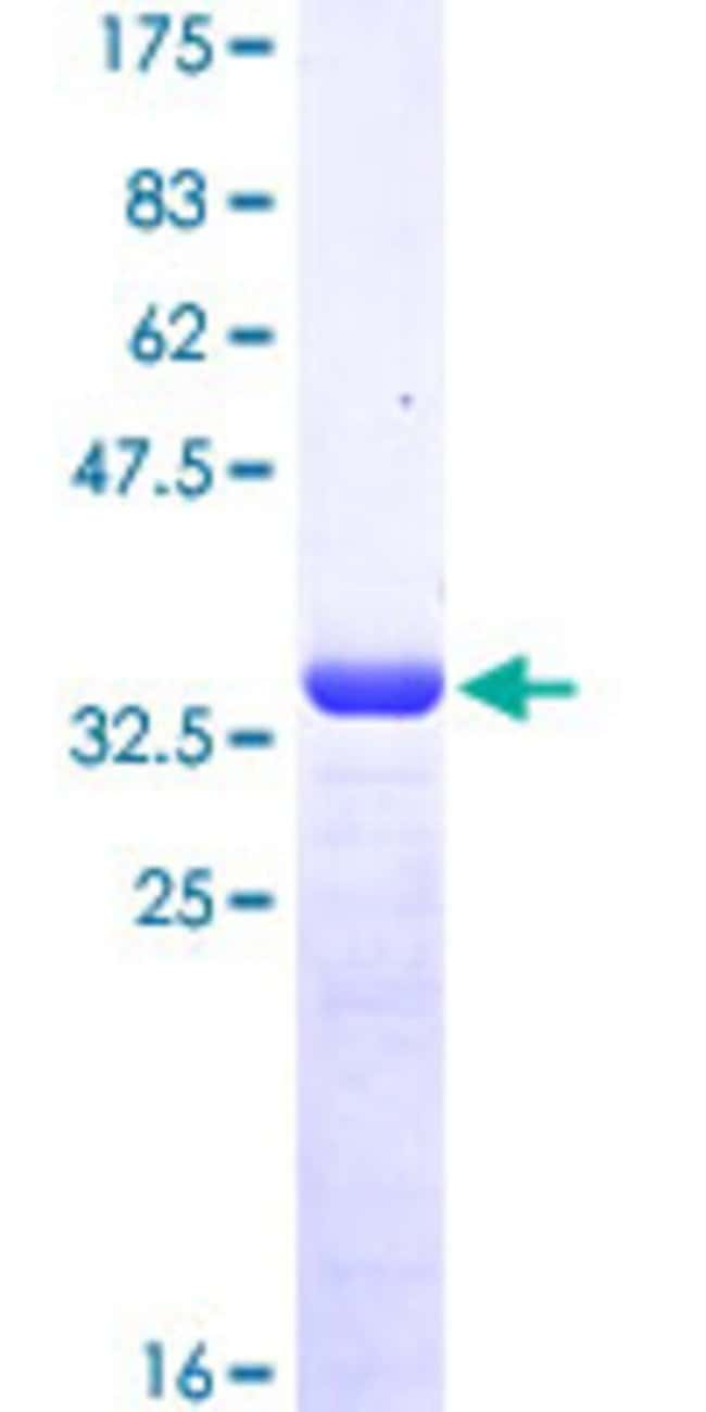 AbnovaHuman MSRB2 Partial ORF (NP_036360, 102 a.a. - 201 a.a.) Recombinant