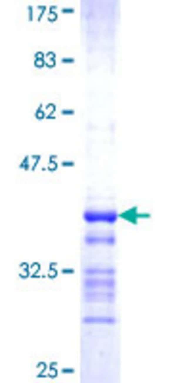 AbnovaHuman SEPHS2 Partial ORF (NP_036380.2, 61 a.a. - 150 a.a.) Recombinant