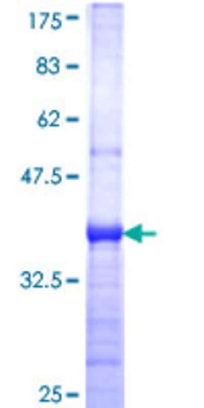 AbnovaHuman SEPHS1 Partial ORF (NP_036379, 1 a.a. - 96 a.a.) Recombinant