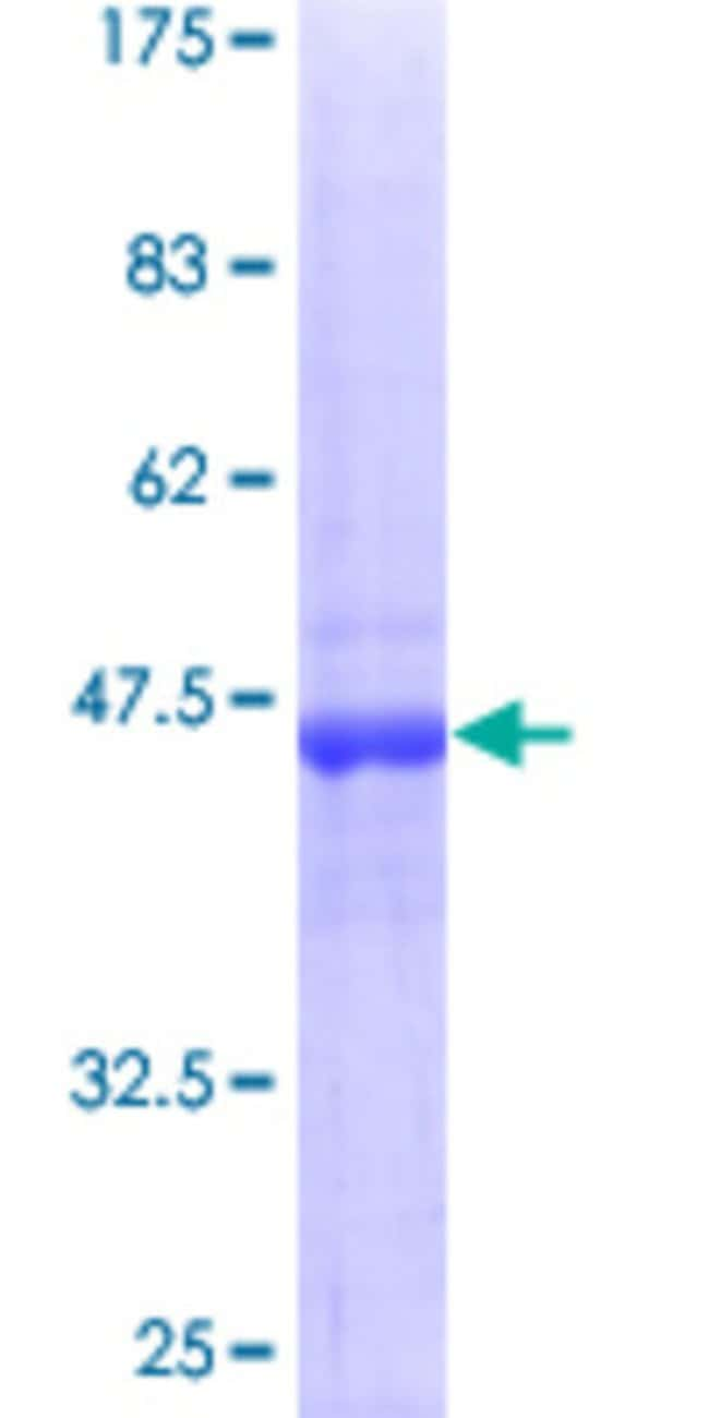AbnovaHuman RAB18 Full-length ORF (AAH15014, 1 a.a. - 206 a.a.) Recombinant