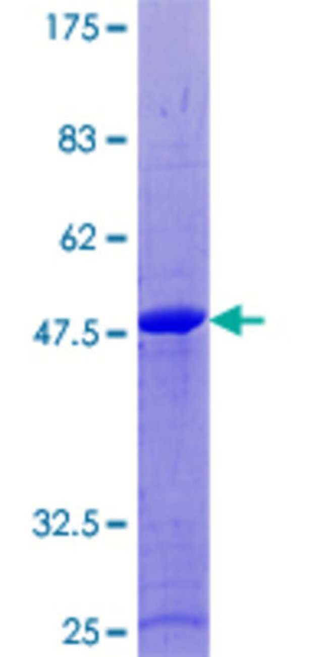 AbnovaHuman RAB18 Full-length ORF (NP_067075.1, 1 a.a. - 206 a.a.) Recombinant