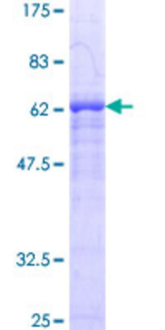 AbnovaHuman SIRT2 Full-length ORF (NP_085096.1, 1 a.a. - 352 a.a.) Recombinant