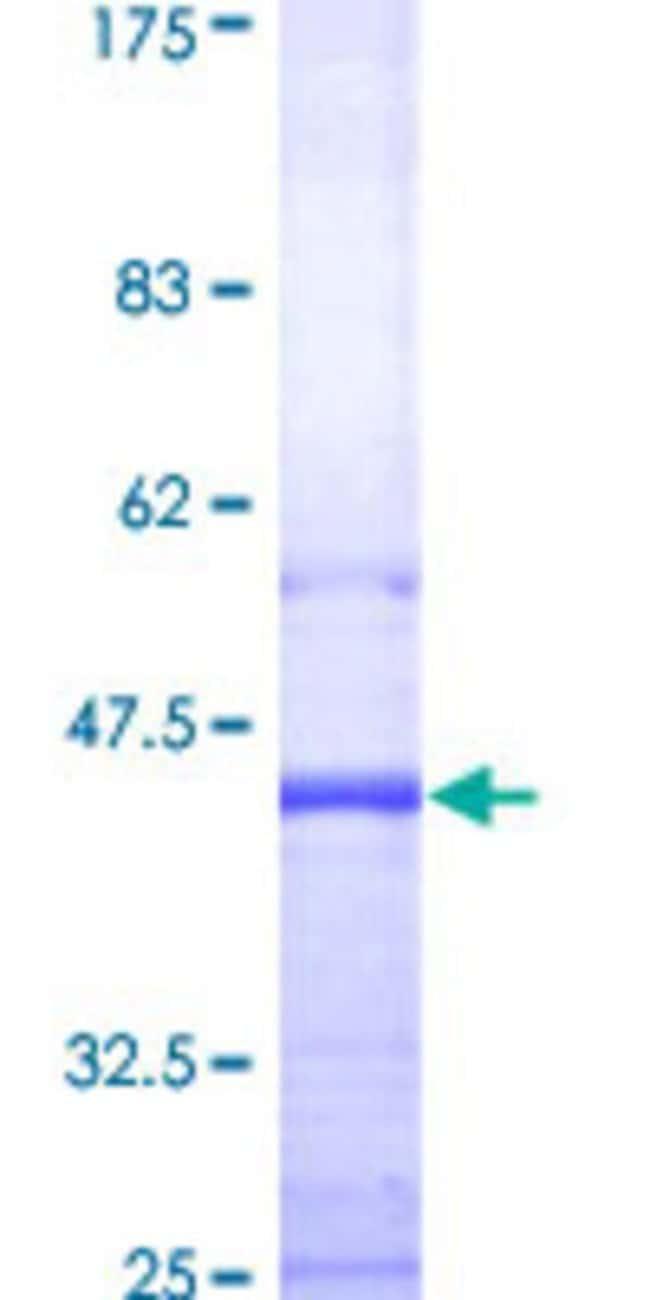 AbnovaHuman SIRT2 Partial ORF (AAH03012, 128 a.a. - 227 a.a.) Recombinant