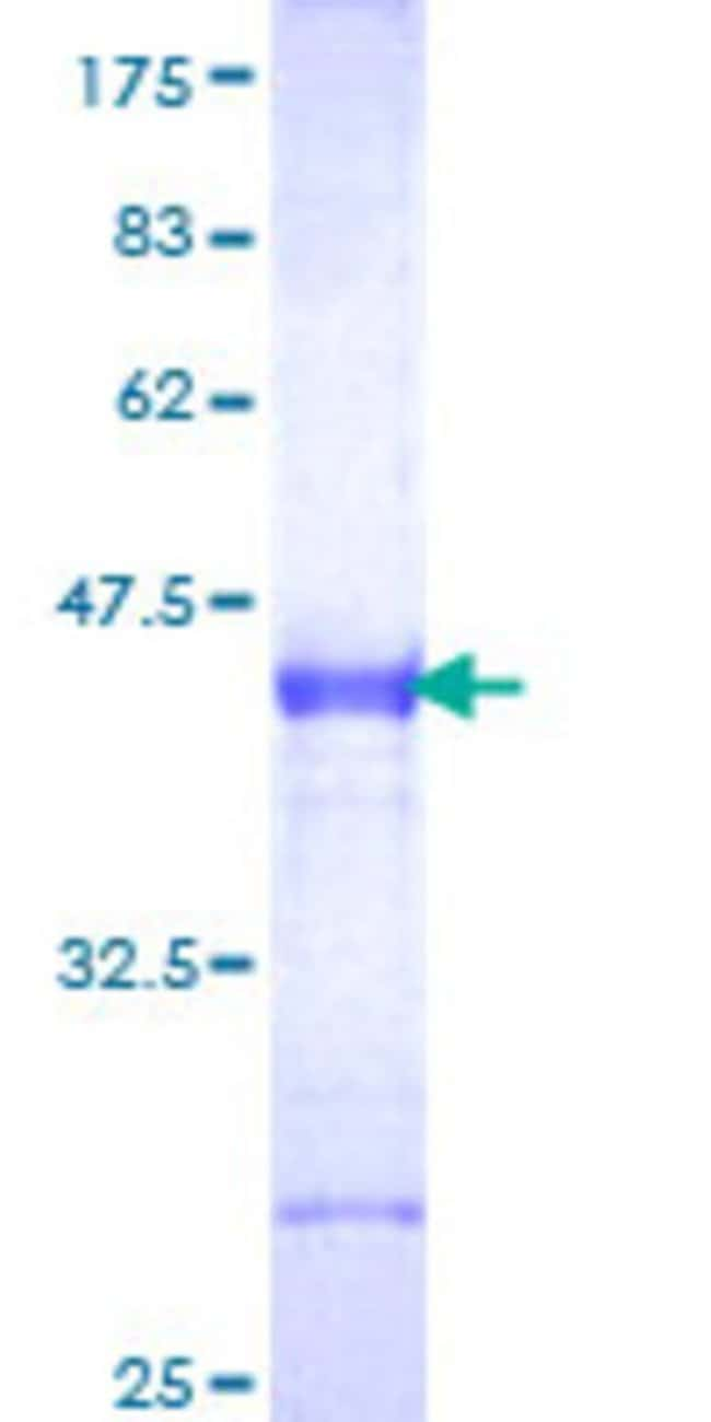 AbnovaHuman DKK1 Partial ORF (NP_036374, 81 a.a. - 180 a.a.) Recombinant