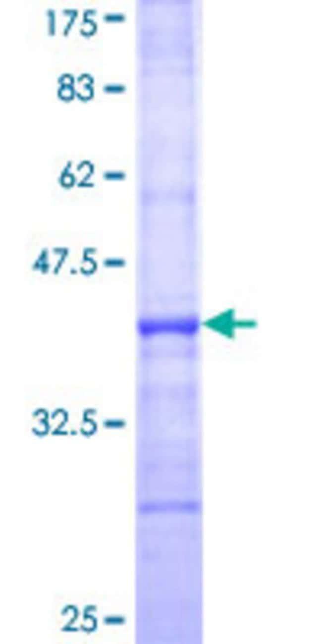 AbnovaHuman LTB4DH Partial ORF (NP_036344, 230 a.a. - 328 a.a.) Recombinant