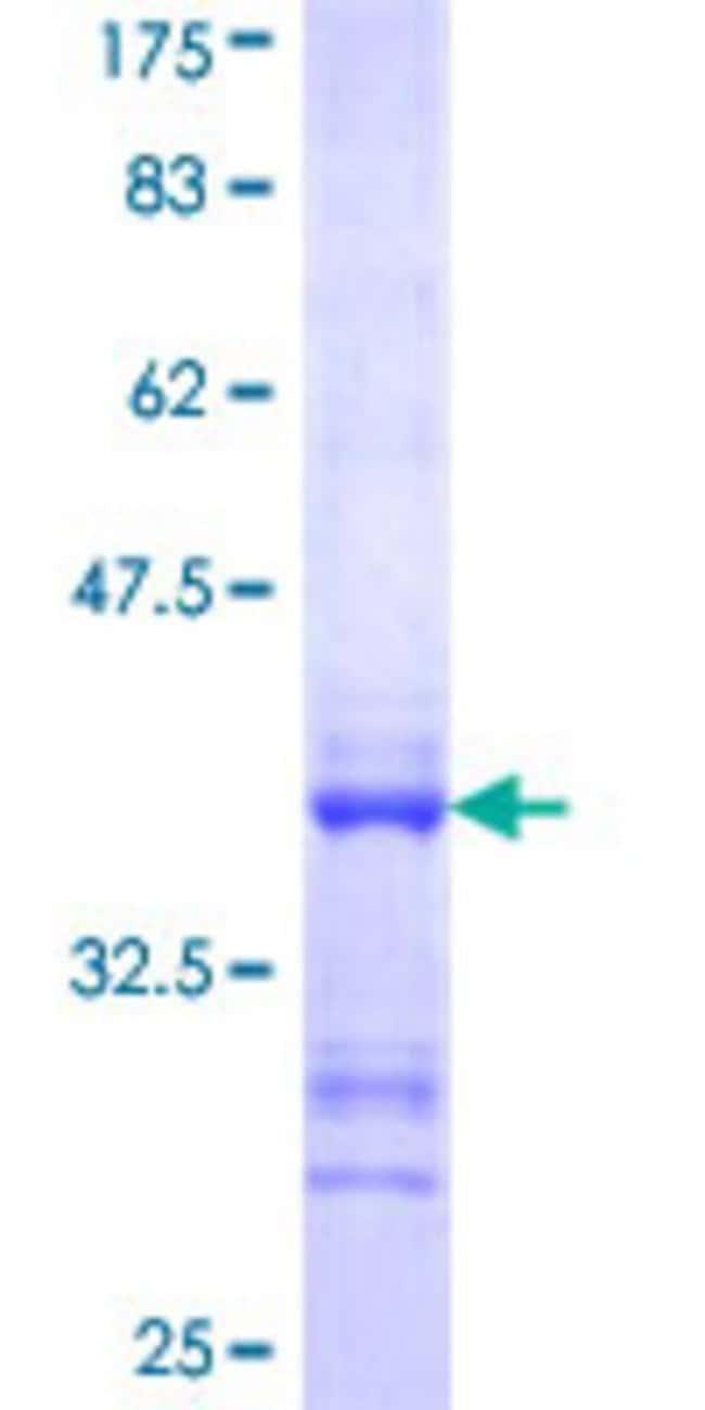 AbnovaHuman SORCS3 Partial ORF (NP_055793, 1147 a.a. - 1222 a.a.) Recombinant