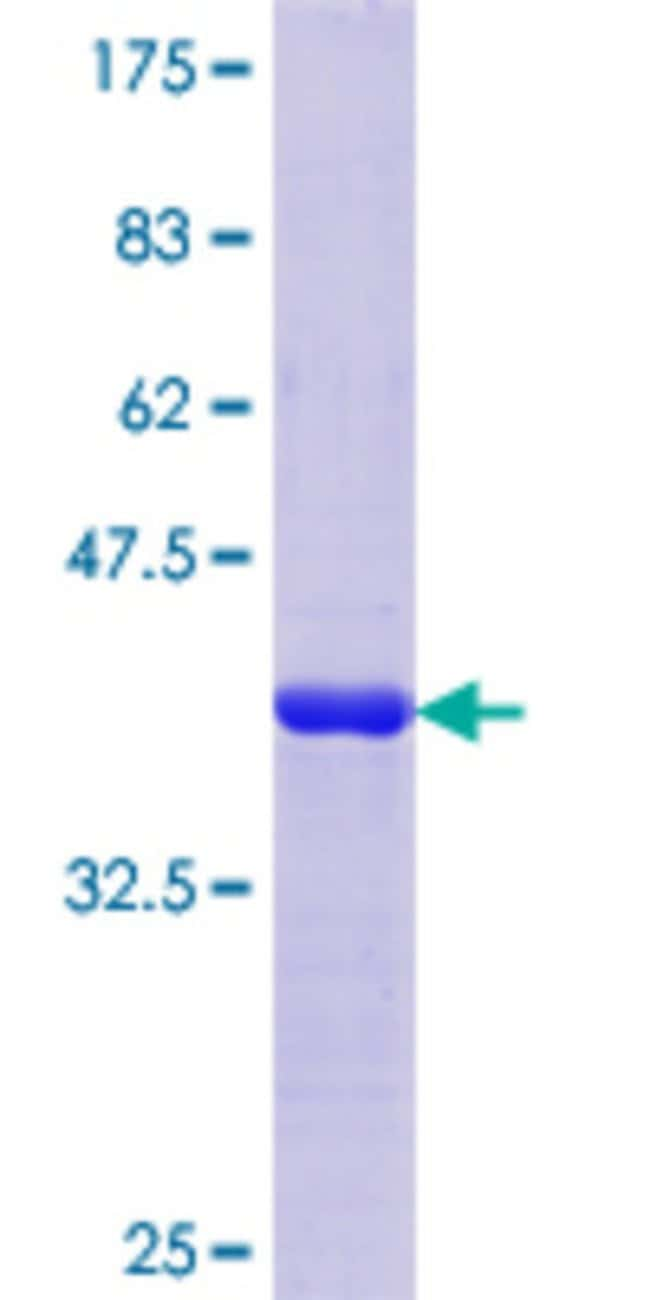 AbnovaHuman SV2C Partial ORF (AAH20200, 2 a.a. - 101 a.a.) Recombinant