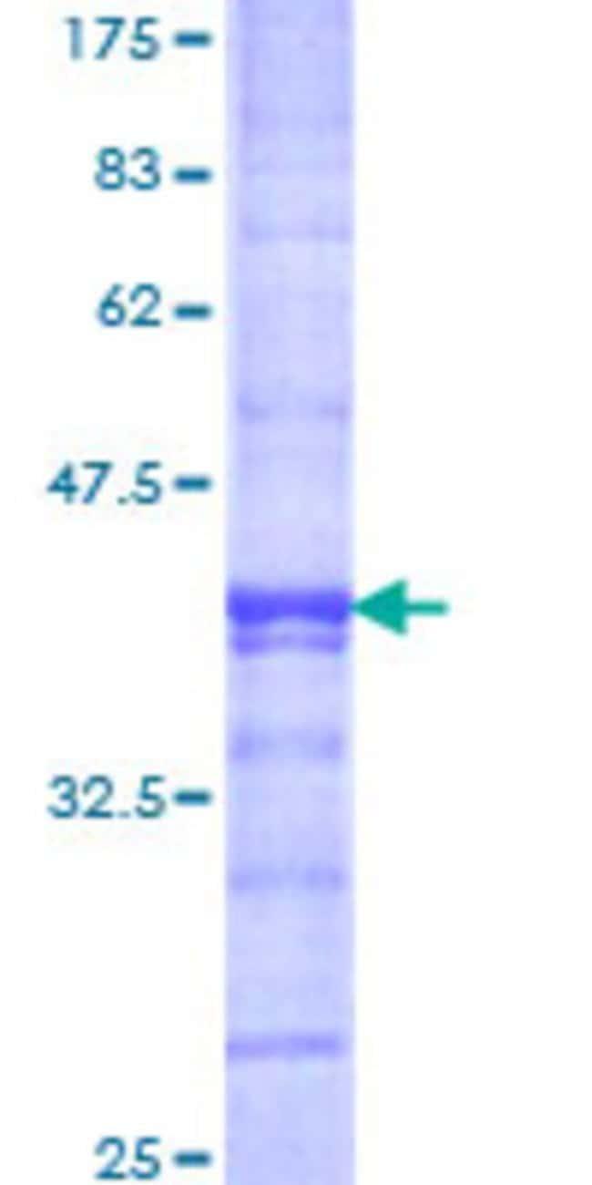 AbnovaHuman FBXL11 Partial ORF (NP_036440, 742 a.a. - 840 a.a.) Recombinant