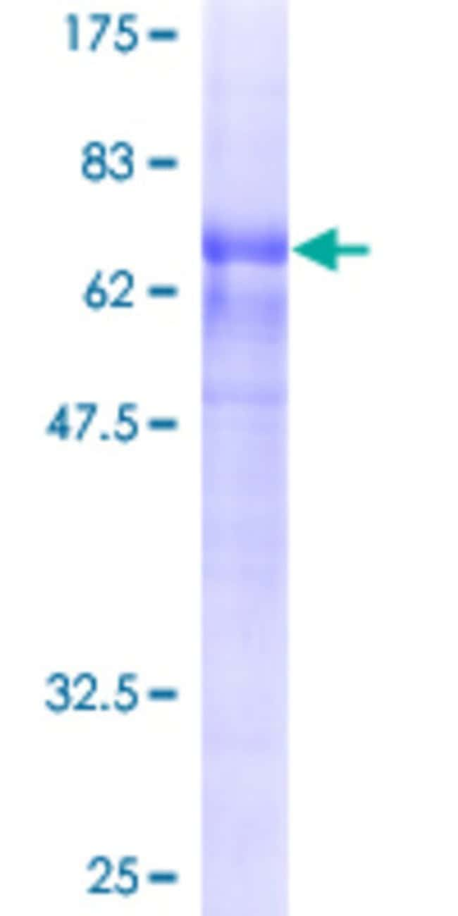 Abnova™Human WDFY3 Full-length ORF (AAH15214, 1 a.a. - 420 a.a.) Recombinant Protein with GST-tag at N-terminal 10μg Abnova™Human WDFY3 Full-length ORF (AAH15214, 1 a.a. - 420 a.a.) Recombinant Protein with GST-tag at N-terminal