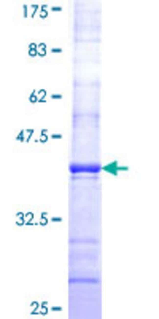 AbnovaHuman DAAM1 Partial ORF (NP_055807, 1 a.a. - 110 a.a.) Recombinant