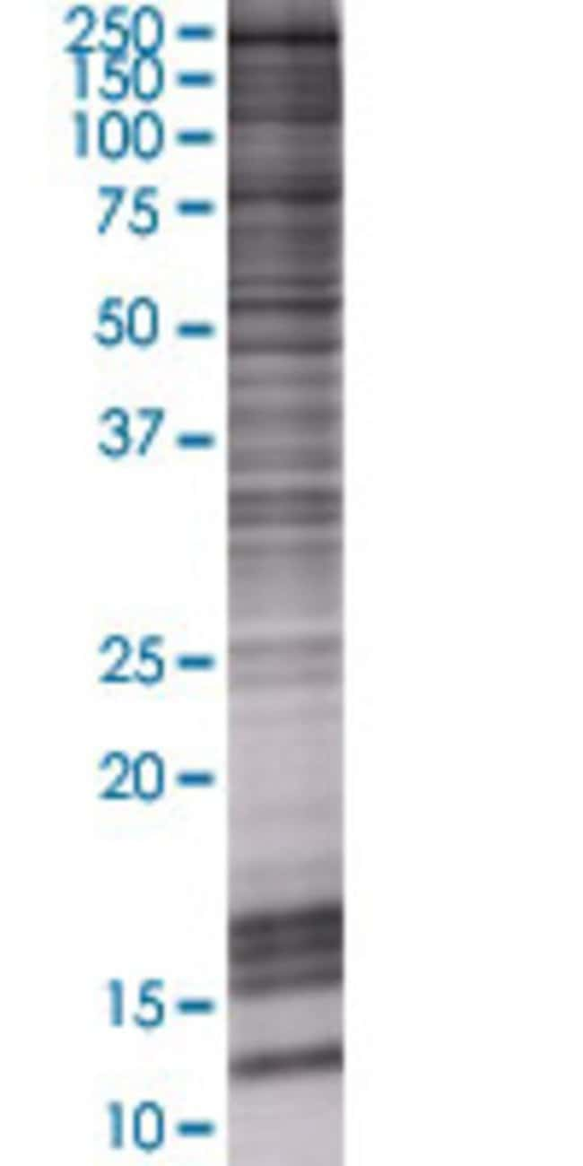 Abnova KDM4B 293T Cell Transient Overexpression Lysate (Denatured) 100µL:Life