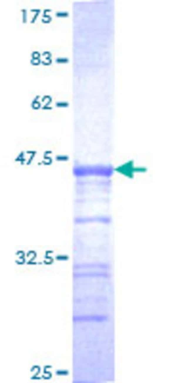AbnovaHuman USP33 Partial ORF (NP_055832, 327 a.a. - 426 a.a.) Recombinant