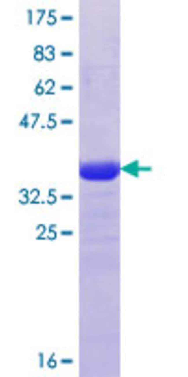 Abnova Human KIF21B Partial ORF (XP_371332, 1183 a.a. - 1282 a.a.) Recombinant