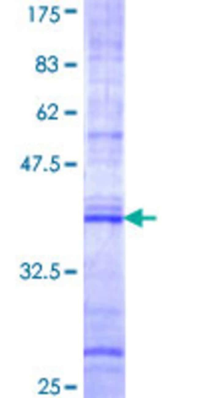 AbnovaHuman FNBP1 Partial ORF (NP_055848, 70 a.a. - 163 a.a.) Recombinant