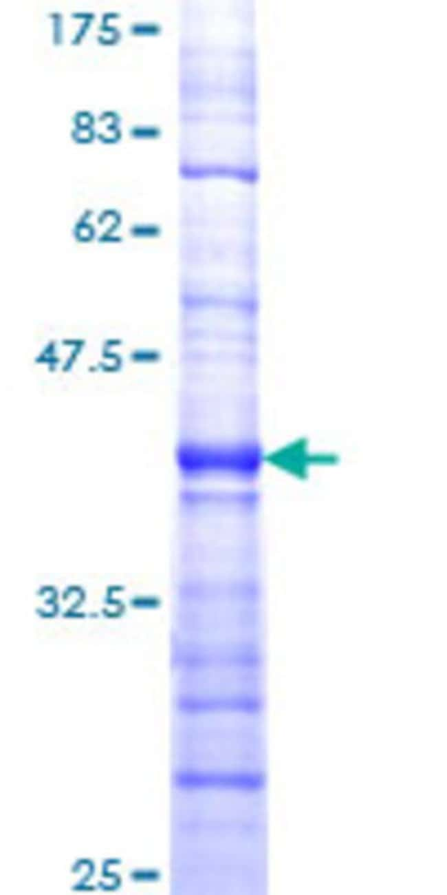 AbnovaHuman SMG1 Partial ORF (NP_055535, 2922 a.a. - 3031 a.a.) Recombinant