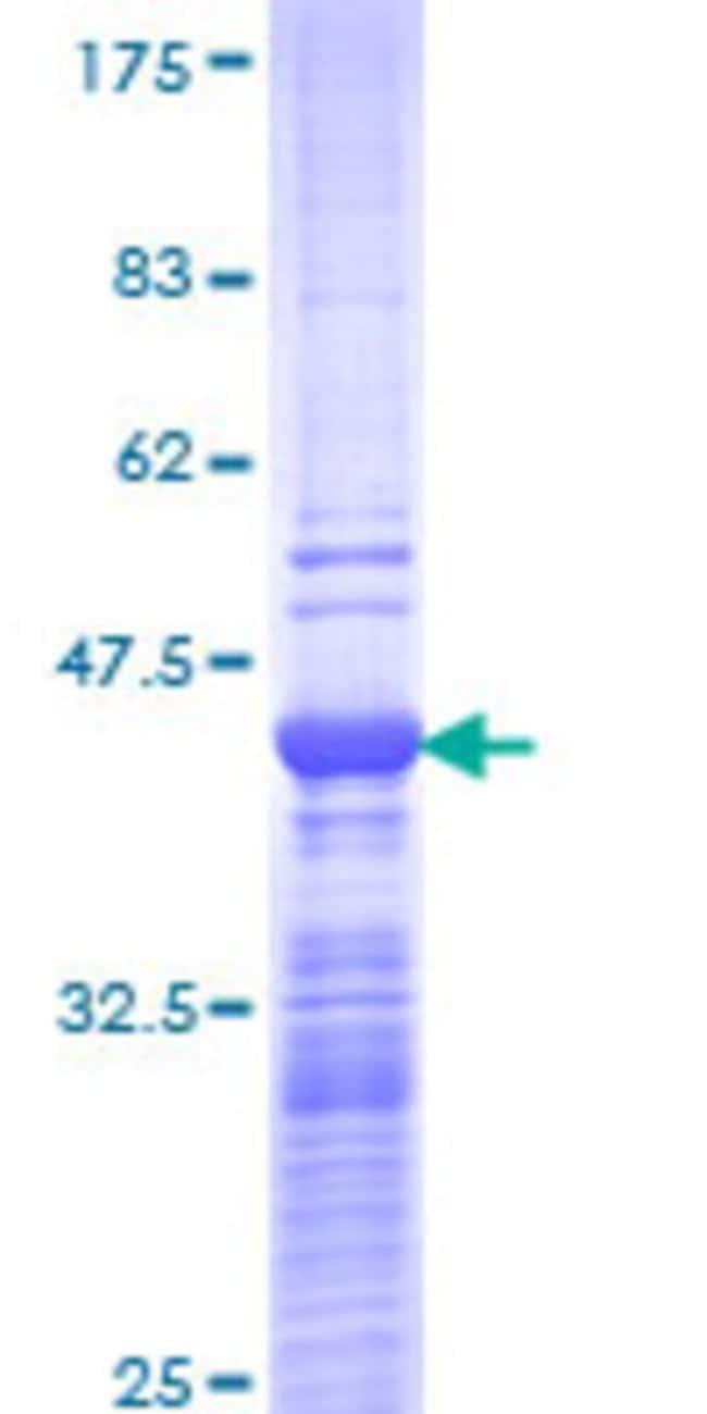 AbnovaHuman NCOA6 Partial ORF (NP_054790, 1954 a.a. - 2063 a.a.) Recombinant