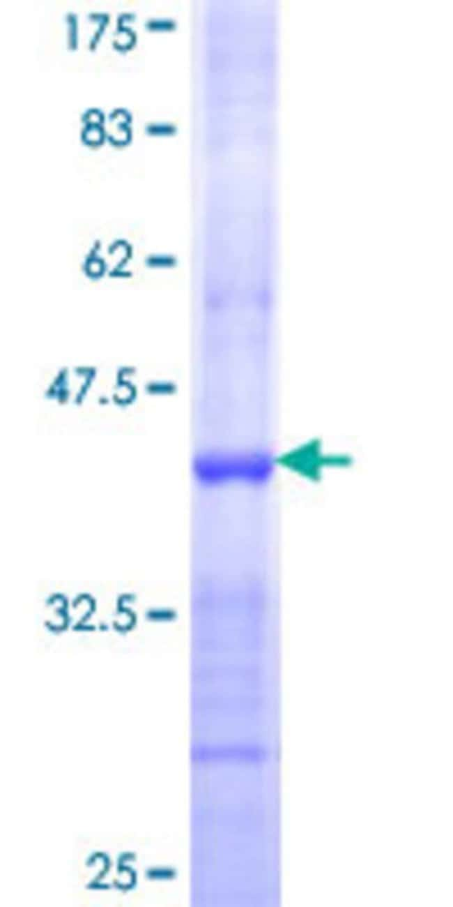 AbnovaHuman NMNAT2 Partial ORF (NP_055854, 208 a.a. - 307 a.a.) Recombinant