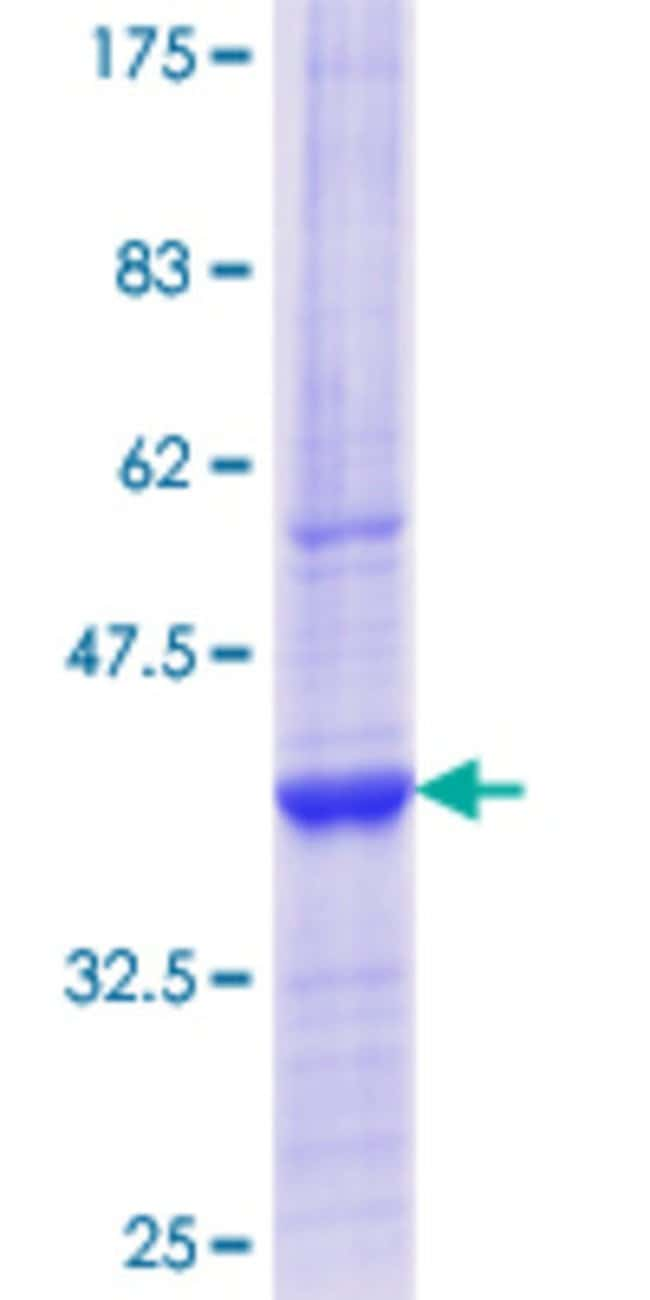 Abnova™Human TXNDC4 Partial ORF (NP_055866.1, 308 a.a. - 406 a.a.) Recombinant Protein with GST-tag at N-terminal 10μg Abnova™Human TXNDC4 Partial ORF (NP_055866.1, 308 a.a. - 406 a.a.) Recombinant Protein with GST-tag at N-terminal