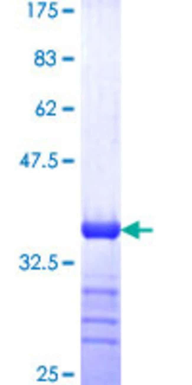 AbnovaHuman SWAP70 Partial ORF (NP_055870, 378 a.a. - 451 a.a.) Recombinant