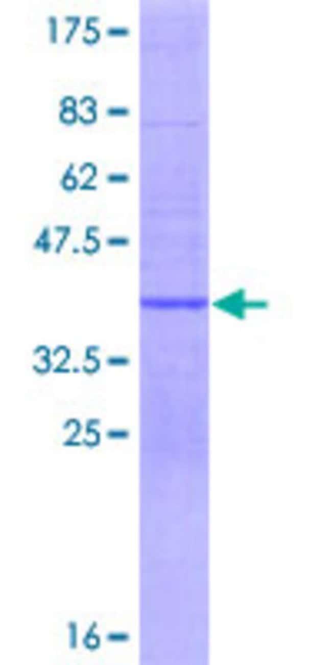 AbnovaHuman ERC1 Full-length ORF (AAH05065.1, 1 a.a. - 91 a.a.) Recombinant