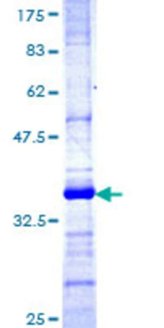 AbnovaHuman TRIM35 Partial ORF (NP_055881, 394 a.a. - 493 a.a.) Recombinant