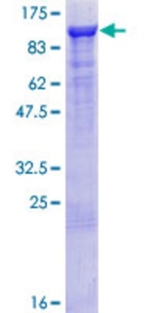 AbnovaHuman ARHGAP26 Full-length ORF (AAH68555.1, 1 a.a. - 759 a.a.) Recombinant