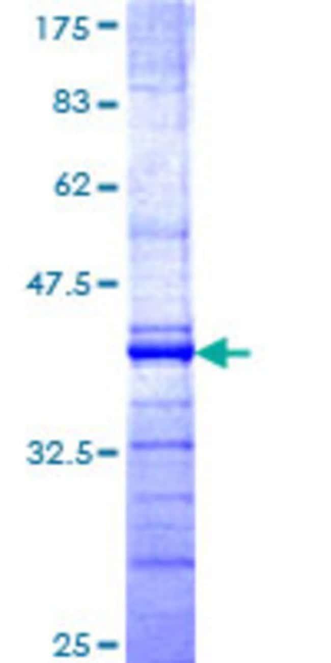 AbnovaHuman PARC Partial ORF (NP_055904, 918 a.a. - 1025 a.a.) Recombinant
