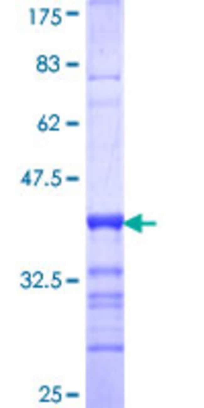 AbnovaHuman NFASC Partial ORF (NP_001005388, 661 a.a. - 758 a.a.) Recombinant