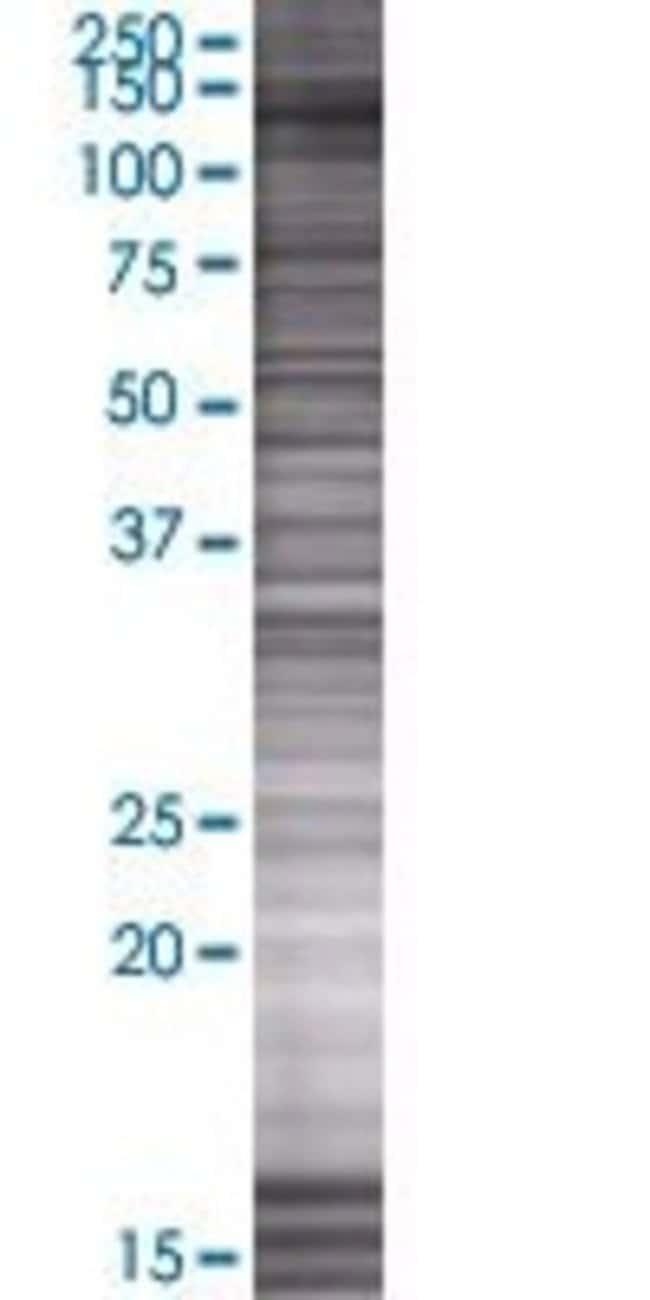 Abnova KIAA0423 293T Cell Transient Overexpression Lysate (Denatured) 100µL:Life