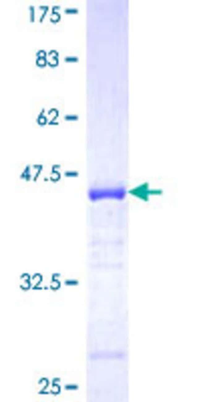 AbnovaHuman EPB41L3 Partial ORF (NP_036439, 915 a.a. - 1007 a.a.) Recombinant