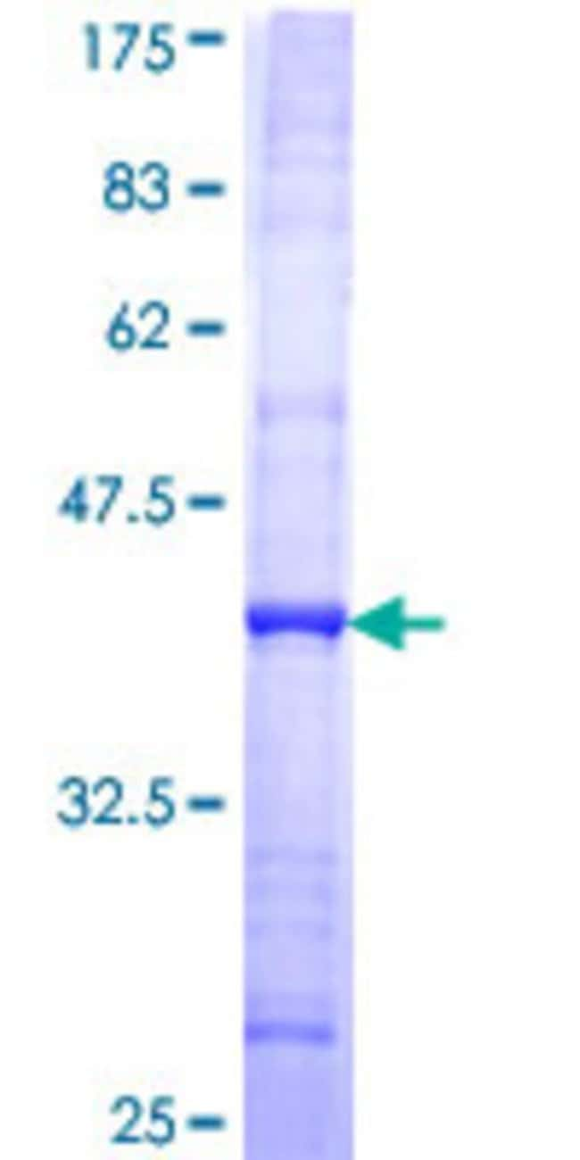 Abnova™Human SMC5L1 Partial ORF (NP_055925, 992 a.a. - 1101 a.a.) Recombinant Protein with GST-tag at N-terminal 10μg Abnova™Human SMC5L1 Partial ORF (NP_055925, 992 a.a. - 1101 a.a.) Recombinant Protein with GST-tag at N-terminal