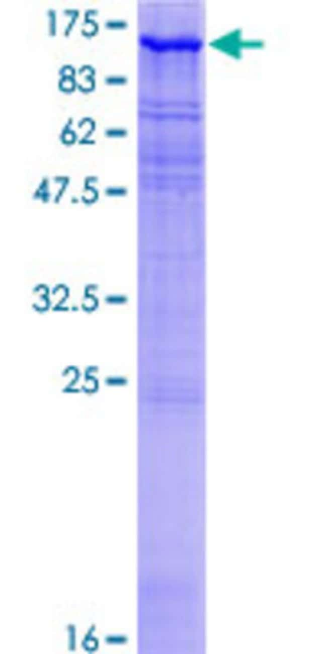 Abnova™Human MAST2 Full-length ORF (AAH15816.2, 1 a.a. - 792 a.a.) Recombinant Protein with GST-tag at N-terminal 10μg Abnova™Human MAST2 Full-length ORF (AAH15816.2, 1 a.a. - 792 a.a.) Recombinant Protein with GST-tag at N-terminal