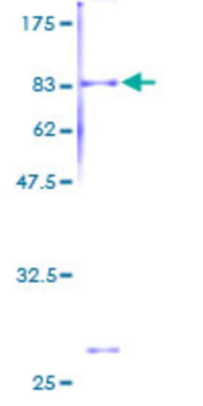 AbnovaHuman 40792 Full-length ORF (AAH36240, 1 a.a. - 434 a.a.) Recombinant