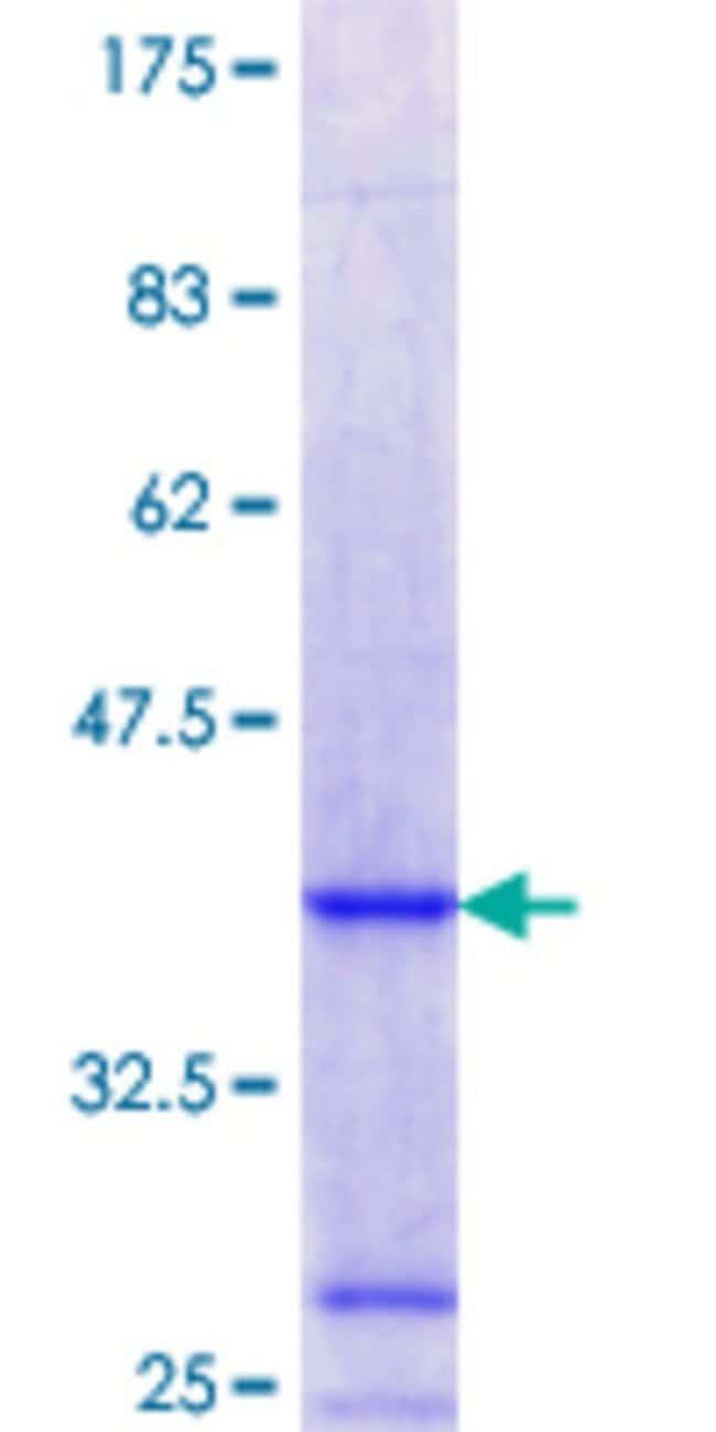 AbnovaHuman SNX13 Partial ORF (NP_055947.1, 861 a.a. - 957 a.a.) Recombinant