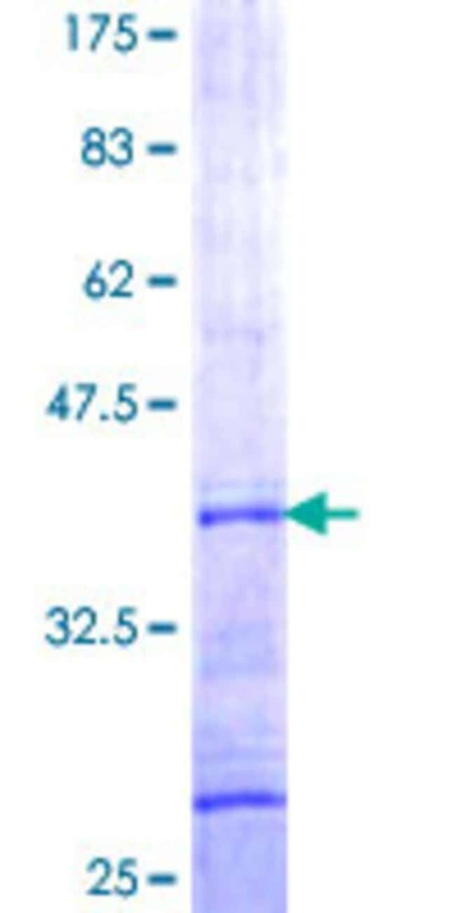 Abnova™ Human GGA3 Partial ORF (NP_619525, 246 a.a. - 345 a.a.) Recombinant Protein with GST-tag at N-terminal 10μg Abnova™ Human GGA3 Partial ORF (NP_619525, 246 a.a. - 345 a.a.) Recombinant Protein with GST-tag at N-terminal