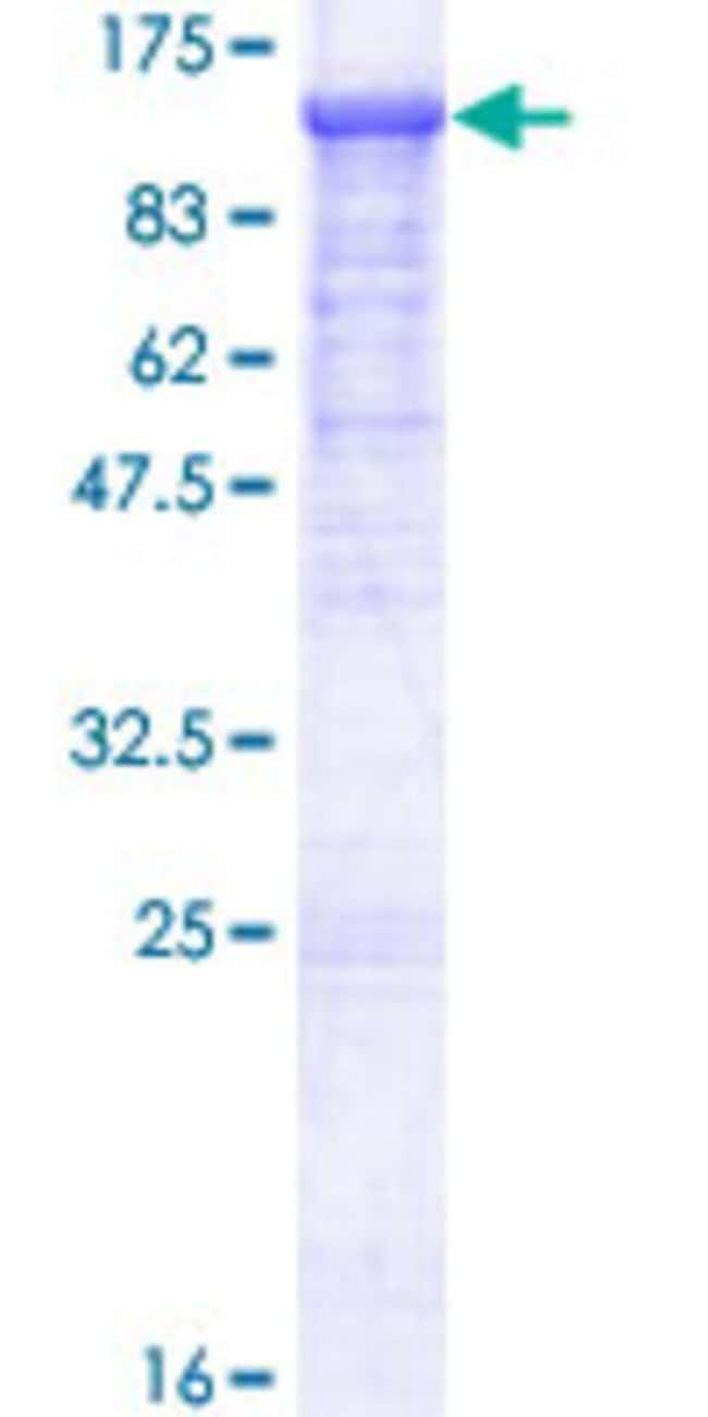 Abnova™ Human EFR3A Full-length ORF (NP_055952.1, 1 a.a. - 785 a.a.) Recombinant Protein with GST-tag at N-terminal 25μg Abnova™ Human EFR3A Full-length ORF (NP_055952.1, 1 a.a. - 785 a.a.) Recombinant Protein with GST-tag at N-terminal