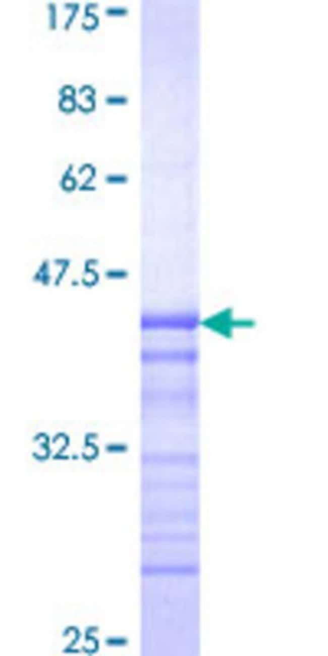 AbnovaHuman PASK Partial ORF (AAH63585, 1 a.a. - 100 a.a.) Recombinant