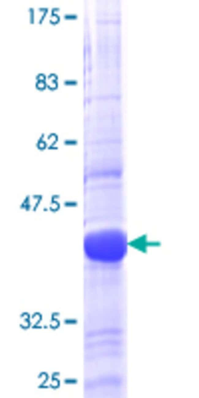 AbnovaHuman RGL1 Partial ORF (NP_055964, 2 a.a. - 109 a.a.) Recombinant