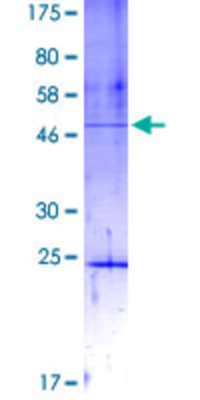 AbnovaHuman DIP2A Partial ORF (NP_055966, 107 a.a. - 301 a.a.) Recombinant