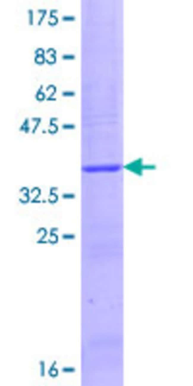 AbnovaHuman CYFIP1 Partial ORF (NP_055423.1, 735 a.a. - 819 a.a.) Recombinant