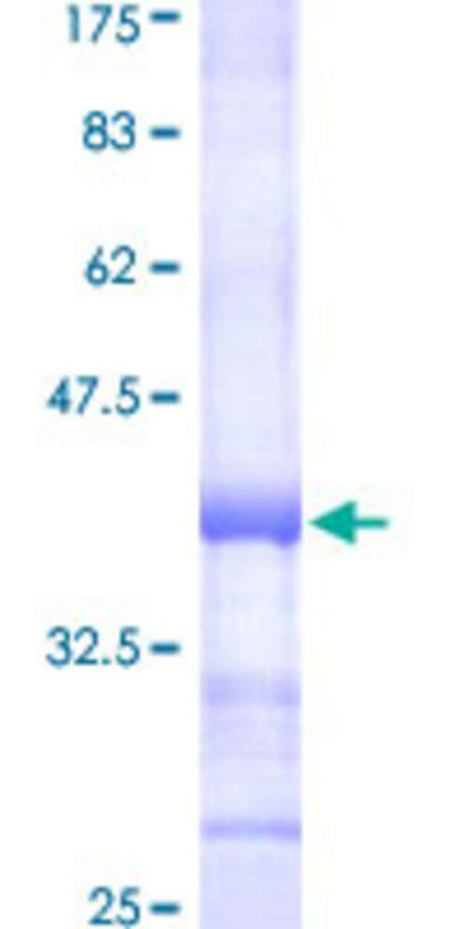 AbnovaHuman GANAB Partial ORF (NP_938149, 865 a.a. - 957 a.a.) Recombinant