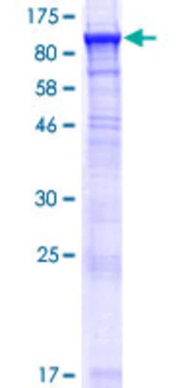 AbnovaHuman ACSBG1 Full-length ORF (NP_055977.3, 1 a.a. - 724 a.a.) Recombinant