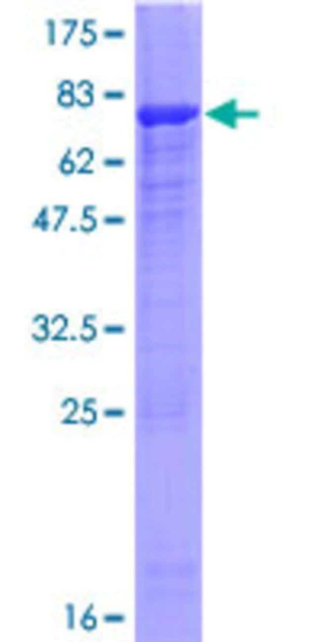 Abnova™Human PLEKHM2 Full-length ORF (AAH68599.1, 1 a.a. - 440 a.a.) Recombinant Protein with GST-tag at N-terminal 25μg Abnova™Human PLEKHM2 Full-length ORF (AAH68599.1, 1 a.a. - 440 a.a.) Recombinant Protein with GST-tag at N-terminal