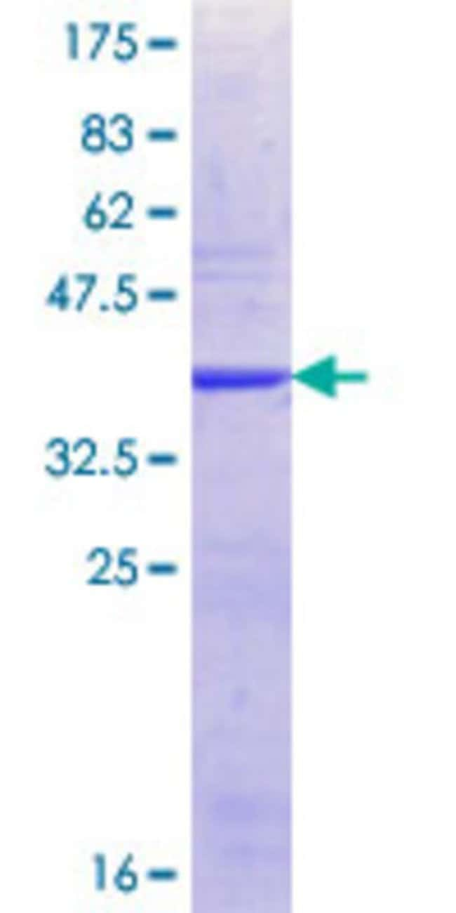 Abnova™Human XPO6 Partial ORF (NP_055986.1, 903 a.a. - 1010 a.a.) Recombinant Protein with GST-tag at N-terminal 10μg Abnova™Human XPO6 Partial ORF (NP_055986.1, 903 a.a. - 1010 a.a.) Recombinant Protein with GST-tag at N-terminal