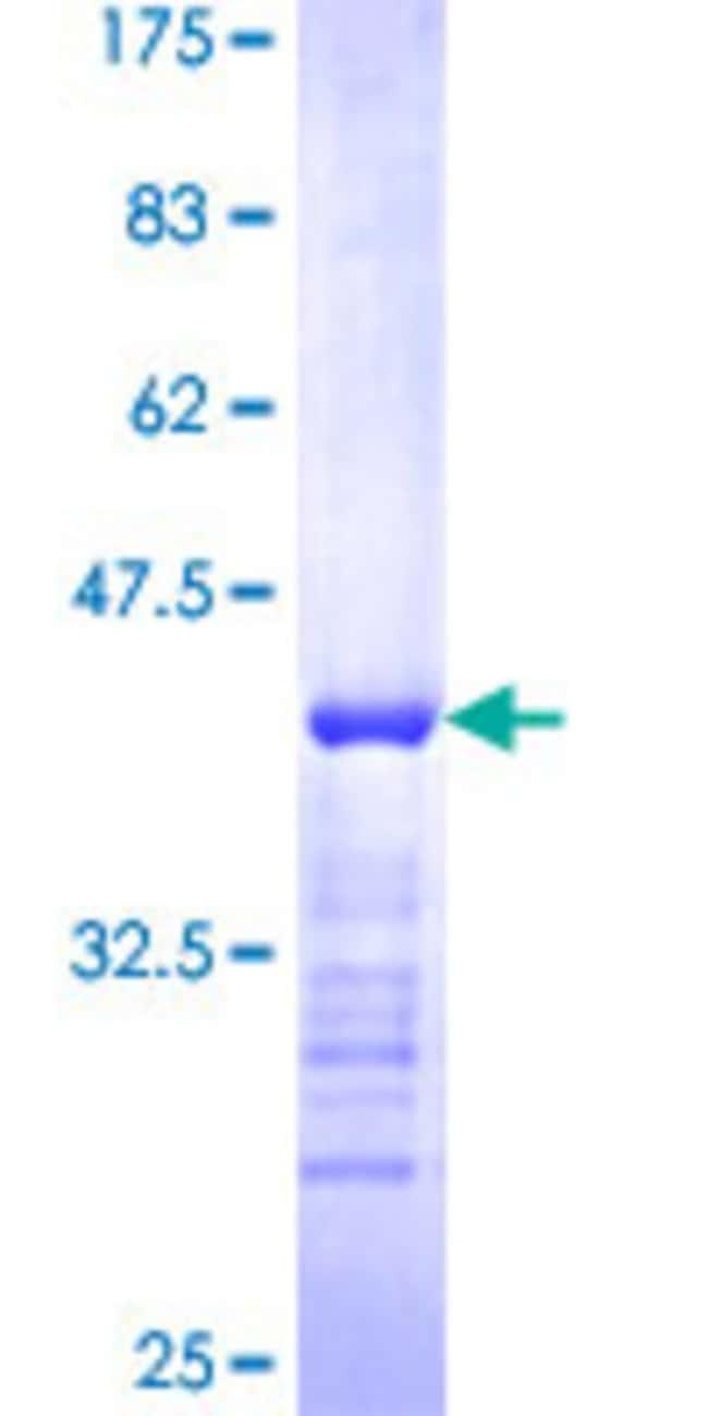 AbnovaHuman SYNE2 Partial ORF (NP_055995, 6702 a.a. - 6799 a.a.) Recombinant